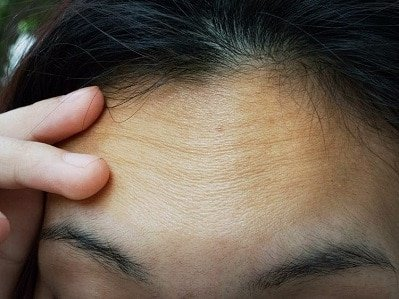Iron Water Harms to Hair & Skin